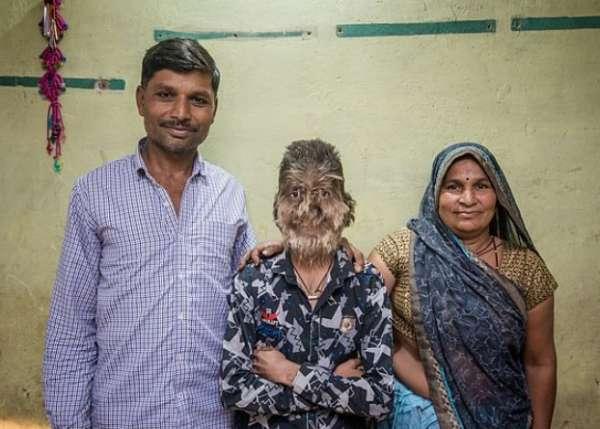 Индийский школьник из-за редкой болезни превратился в