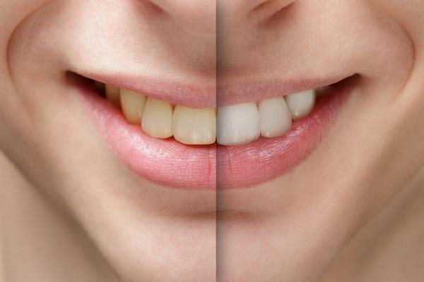 Эксперты рассказали, что может означать желтый цвет зубов